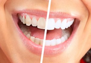 laser teeth whitening glasgow before and after